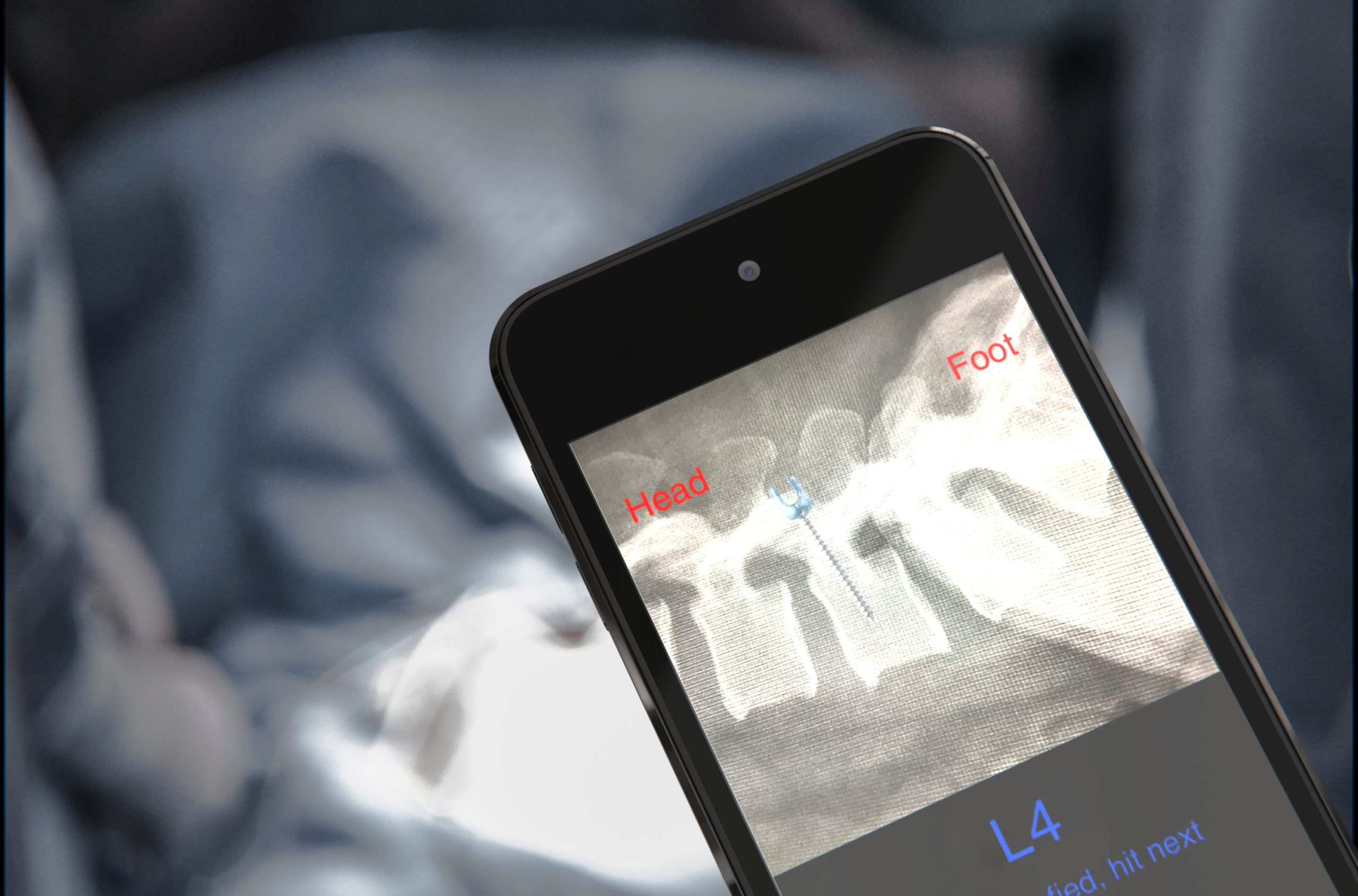 A screen of the navigation feature during surgery